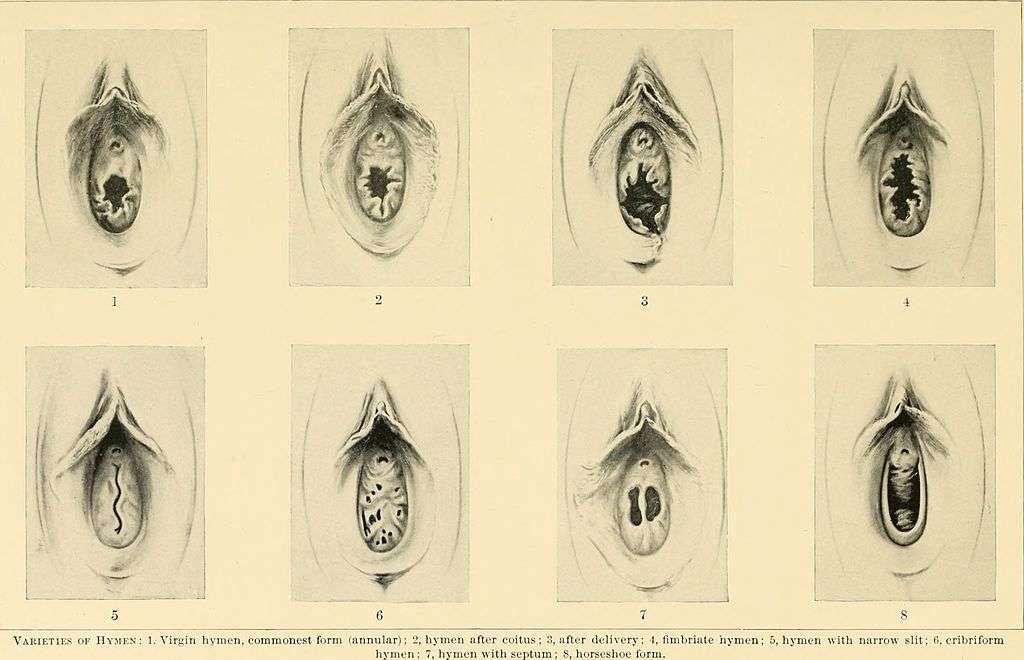 La rupture ou l'ouverture naturelle de l'hymen est multifactorielle © Wikimedia Commons, Norris Richard C., DP