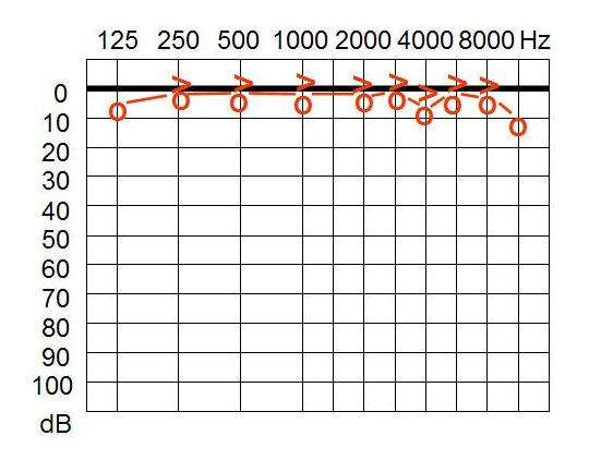 Un audiogramme permet d'évaluer les pertes auditives associées aux différentes fréquences. © Welleschick, Wikimedia, CC by-sa 3.0