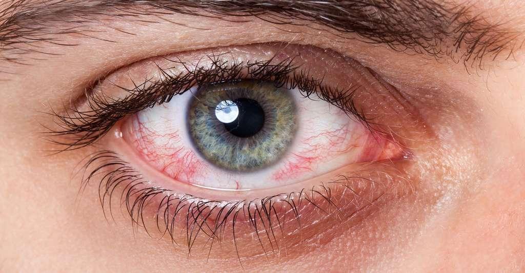 Les pathologies de l'œil. © Antonio Gravante, Fotolia