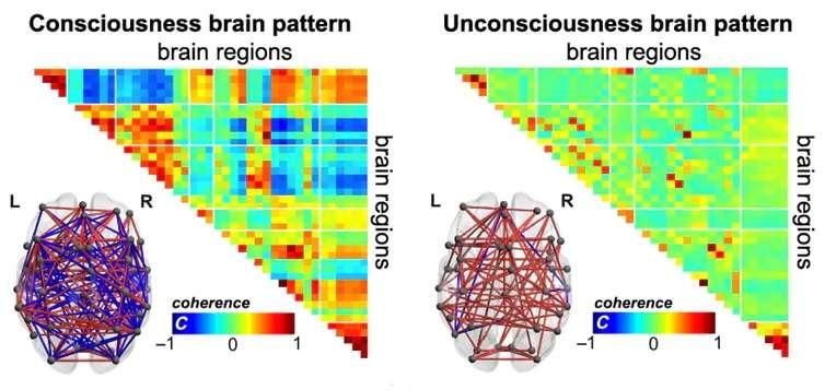 Les communications entre les régions du cerveau diffèrent entre un cerveau conscient ou inconscient. © E. Tagliazucchi & A. Demertzi