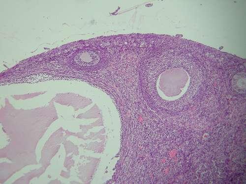 Coupe d'un ovaire de lapin. Crédits Thomas Bresson - Wikimedia Commons