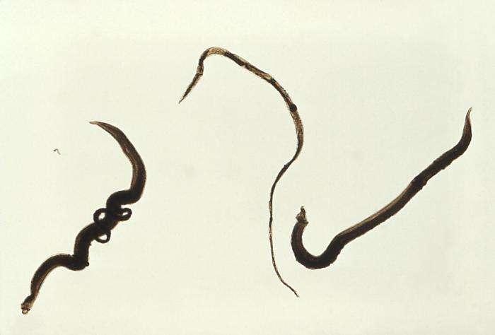 Les schistosomes adultes chez l'Homme résident dans les veinules mésentériques dans divers endroits, qui semblent parfois être spécifiques à chaque espèce. Schistosoma mansoni, par exemple, s'installe le plus souvent dans les veines qui drainent le gros intestin. © CDC, Wikipédia, DP
