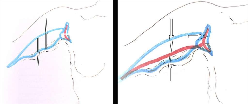 À gauche, dessin de la brachioplastie du bras en T et, à droite, cicatrice finale en T. © Dr Mitz, tous droits réservés