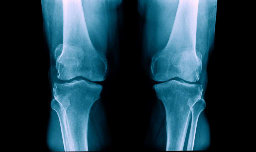 Déchirure du ménisque liée à l'arthrose : faut-il opérer ? © angkhan, Fotolia