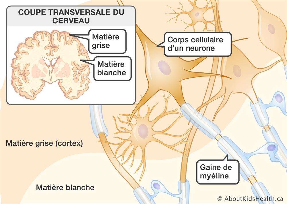 Le cerveau est composé de substance grise qui regroupe le corps cellulaire des neurones, et de la substance blanche qui regroupe les axones, myélinisés, ou non, des neurones. © AboutKidsHealth