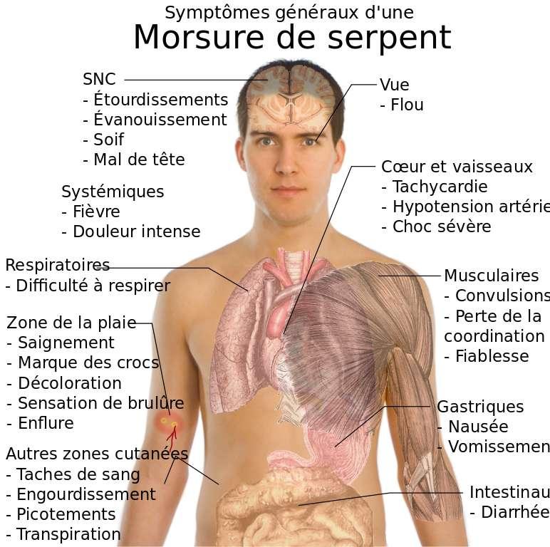 Les symptômes les plus courants d'une envenimation quelconque, toutefois, les symptômes varient beaucoup suivant le type de serpent qui a causé la morsure. © Mikaël Haggstrom, Wikimedia commons, DP