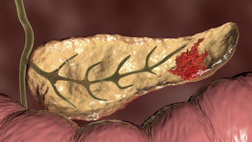 Vision d'artiste du pancréas, organe situé entre l'estomac et l'intestin, portant une tumeur. © Kateryna Kon, Science Photo Librairy