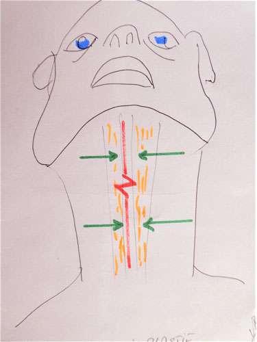 Principes de la cervico-plastie verticale. © DR Mitz, tous droits réservés