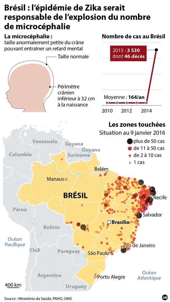 En 2015, l'épidémie de Zika au Brésil s'est accompagnée d'une augmentation des cas de microcéphalie. © idé