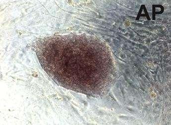 Colonie de cellules souches pluripotentes induites provenant de cellules sanguines. Elles conservent certaines modifications épigénétiques du type cellulaire d'origine. © Cell