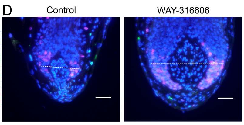 Un bulbe de follicule pileux humain, centre de contrôle pour la croissance des cheveux. À gauche, un follicule témoin et à droite, un follicule traité aux WAY-316606, un médicament contre l'ostéoporose. © Nathan John Hawkshaw, université de Manchester