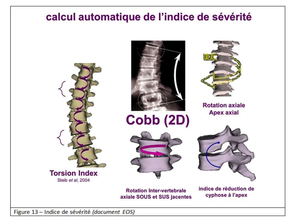 La mesure de l'angle de Cobb permet d'évaluer la scoliose. © EOS - Tous droits réservés/Reproduction interdite