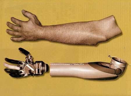 Réalisé à partir de photos prises avant l'amputation, cet habillage de plastique rendra la prothèse discrète.