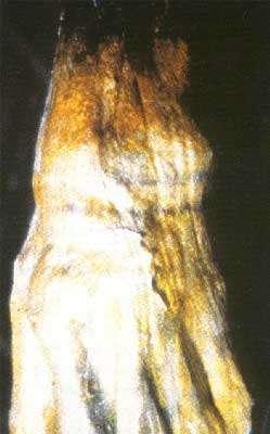 Ötsi © M. Theissl: Ce tatouage en forme de croix est situé sur le genou droit.