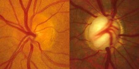 Papille optique, normale à gauche, glaucomeuse à droite. Crédit Belgian Glaucoma Society