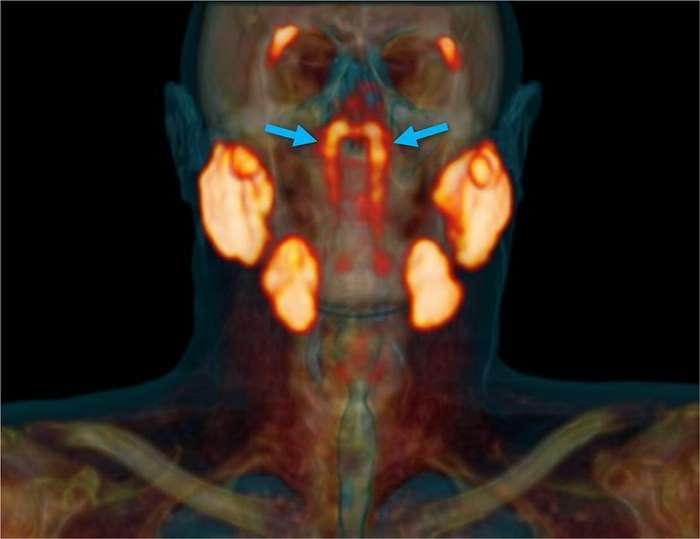 Un aperçu des glandes tubariales, visualisées avec le PSMA PET-scan. © Vastal et al.
