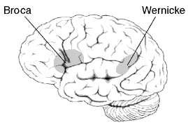 L'aire de Broca est responsable du langage ; une lésion sur l'aire de Wernicke peut induire un déficit de compréhension du langage. © DP