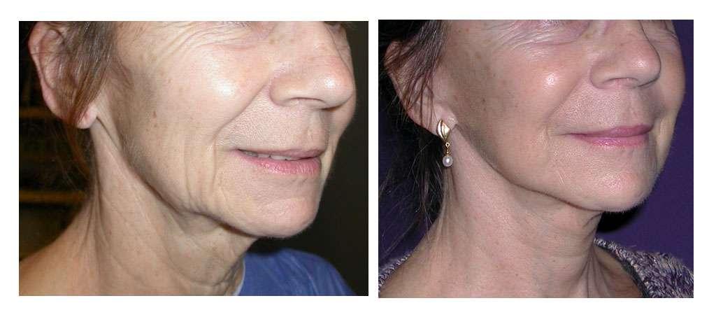 Patiente avant et après le lipolift. © Dr Mitz, tous droits réservés