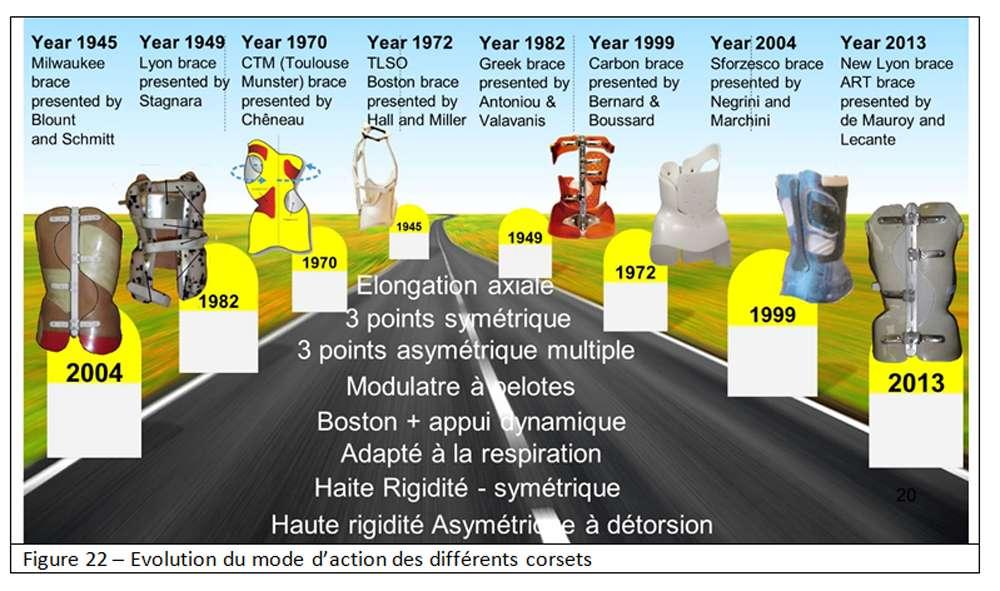 L'évolution des corsets. © Docteur Jean-Claude de Mauroy. Tous droits réservés/Reproduction interdite