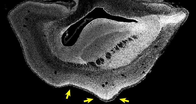 Image d'une coupe d'hémisphère cérébral d'un fœtus de ouistiti transgénique âgé de 101 jours. Les noyaux des cellules sont visualisés en blanc. Les flèches indiquent un sillon et un gyrus. © Heide et al, MPI-CBG