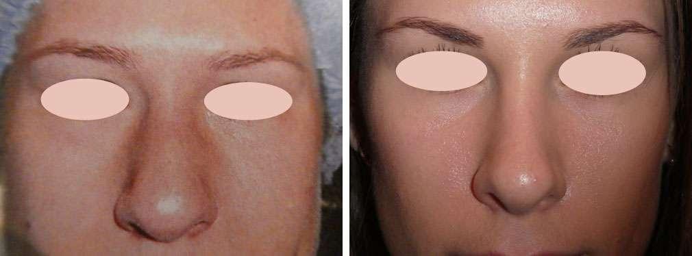 Grand nez sévère corrigé par rhinoseptoplastie, avant et après. © Dr Mitz, tous droits réservés