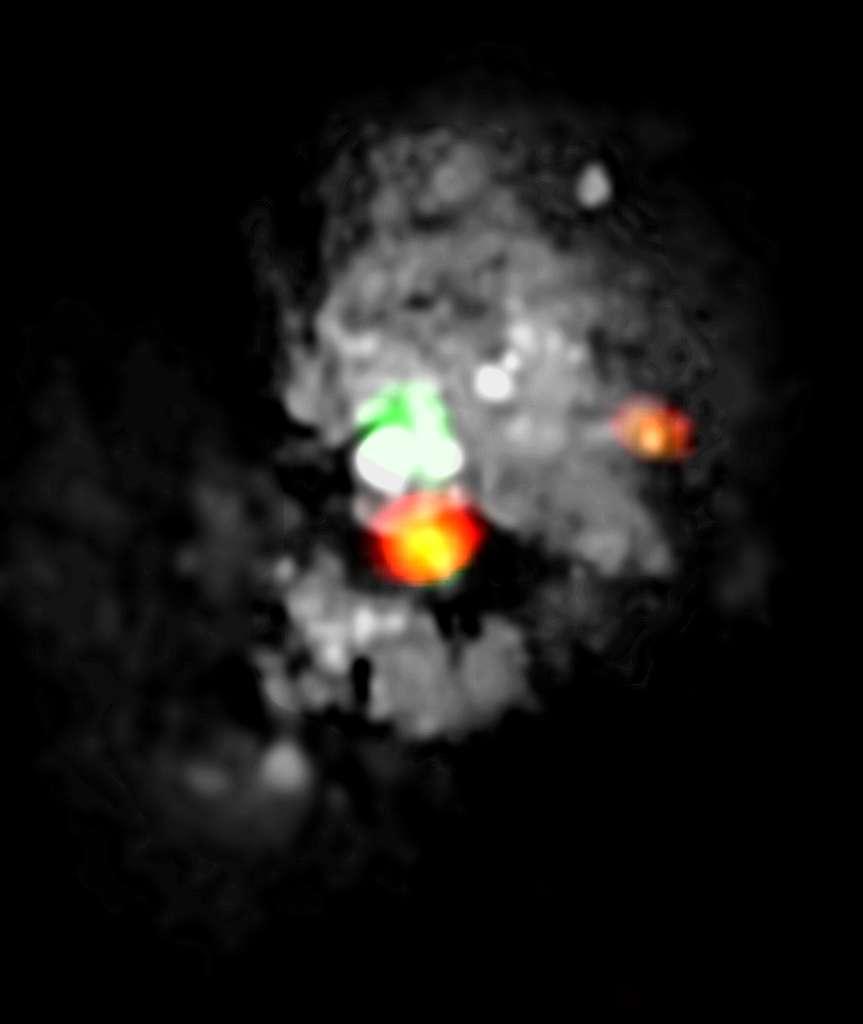 Grâce à l'observatoire Noema, les astronomes ont pu détecter une région de formation stellaire très active dans le « Medusa merger ». L'image multilongueur d'onde montre « l'œil de Méduse » (orange) qui se situe directement en dessous du trou noir au centre de NGC 4194 (blanc et vert ici). © Iram, Nasa, Esa, Hubble Space Telescope, Hubble Legacy Archive