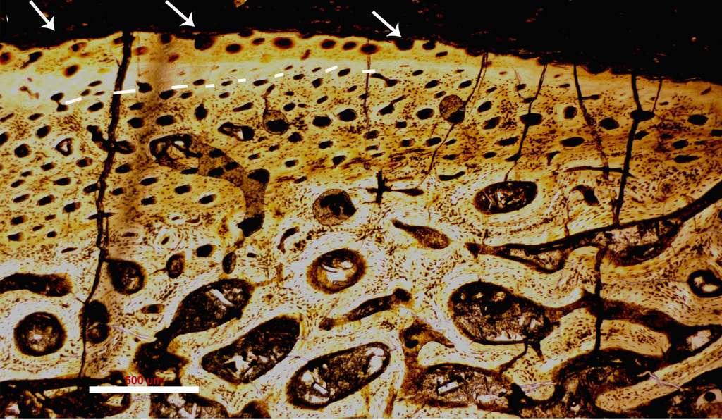 Microphotographie d'une section réalisée dans un os fossilisé de Psittacosaurus trouvé dans le groupe géologique Jehol (Chine). Les trous d'abrasion visibles à la surface, mais aussi les craquelures qui en partent en disent long sur les conditions de la mort du dinosaure. La barre d'échelle vaut 500 µm. © Baoyu Jiang