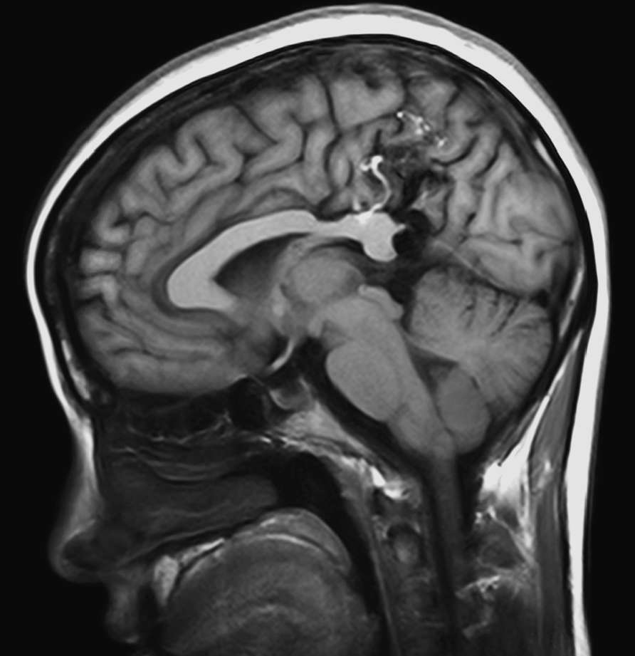 L'imagerie par résonance magnétique, un outil de diagnostic clinique [b]. © L'Actualité chimique