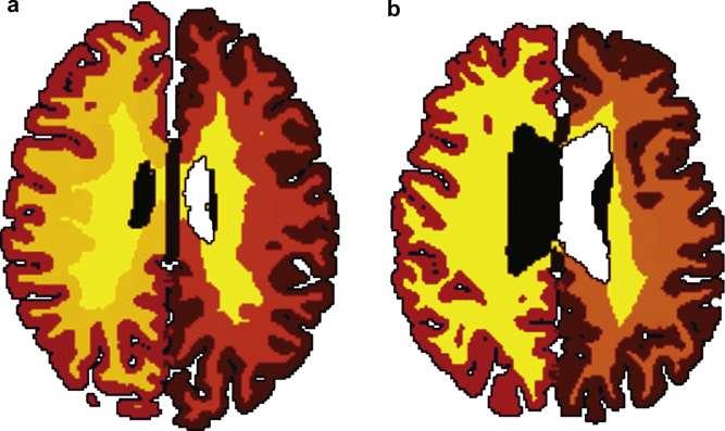 Les IRM permettent de comparer la matière grise (en marron) et la substance blanche (ici en jaune) chez des sujets minces (a) et obèses (b). © Lisa Ronan et al., Neurobiology of Aging 2016