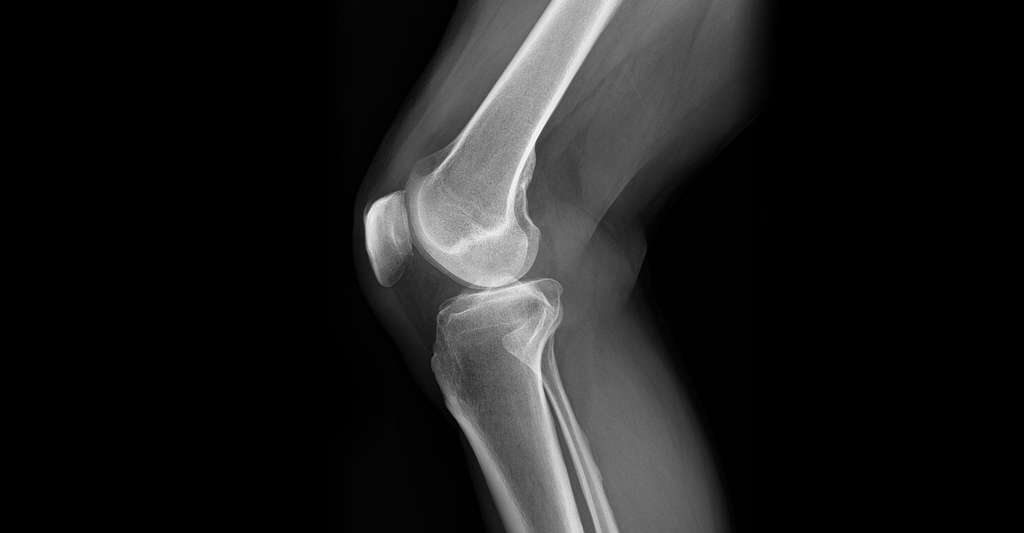 Radiographie du genou. © Ptrump16, wikimedia commons, CC by-sa 4.0