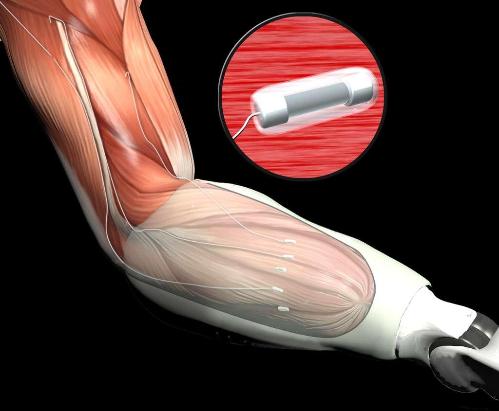 C'est le docteur Kuiken du Rehabitation Institut of Chicago (RIC) qui a élaboré, dès 2002, la technique appelée Targeted Muscle Reinnervation (TMR), autrement dit, la « réinnervation musculaire ciblée ». Les chercheurs ont remarqué que les cellules musculaires étaient capables de se lier aux terminaisons nerveuses restantes et de répondre aux impulsions du cerveau. En associant cet ensemble à un support en matériau polymère de taille nanométrique, il permet au cerveau de contrôler les mouvements de la prothèse robotisée, comme s'il s'agissait du véritable membre. © Darpa