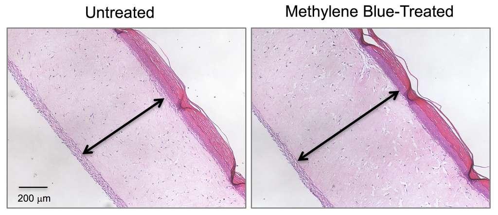 Coupes de peau (modèle avec des cellules vivantes) : à gauche sans traitement, à droite avec le bleu de méthylène. L'épaisseur est plus importante avec le traitement. © Zheng-Mei Xiong, University of Maryland