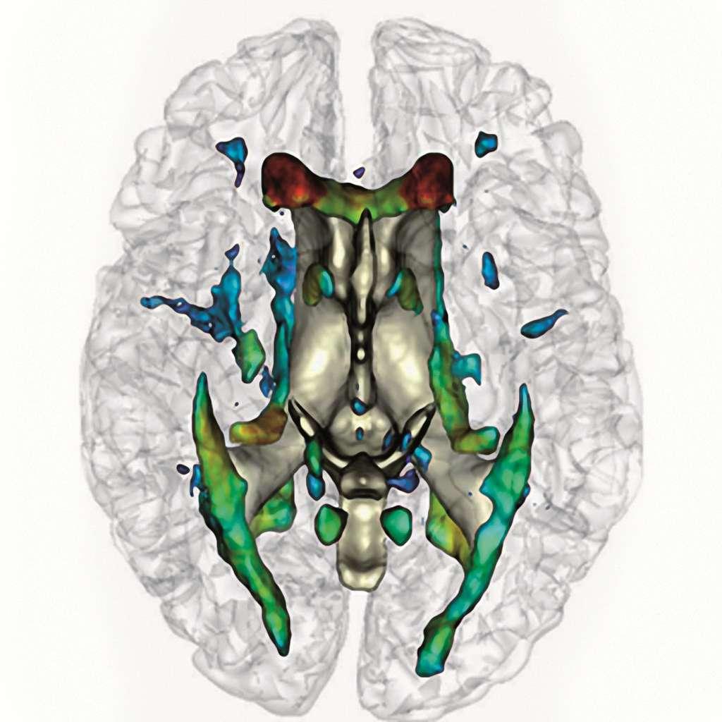La résonance magnétique contre les cerveaux déments
