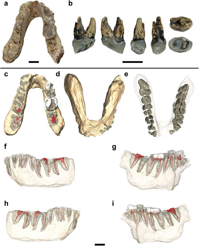 En haut, la mandibule de Graecopithecus freybergi trouvée à Pyrgos, en Grèce et, à gauche, la dent découverte à Azmaka, en Bulgarie, et appartenant à un animal appartenant au même genre, Graecopithecus sp., si ce n'est à la même espèce. De c à e, différentes vues de la mandibule et, de f à i, les images construites au scanner CT, montrant l'implantation des dents. Les barres d'échelle représentent toutes 1 cm. © Jochen Fuss et al., Plos One