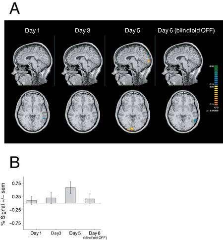 En A, images en IRM montrant, marquées en couleurs, les zones présentant des différences entre les sujets aux yeux bandés et les témoins (couleur orange dans l'image prise au jour 5, bleue dans celle du jour 6). En B, résultats de tests au niveau de la zone colorée en orange, dans lesquels on mesure la réponse de ses neurones à des stimulations tactiles. L'axe vertical indique, en pourcentage, la différence de résultats entre les sujets avec et sans masque. On voit qu'elle maximale au jour 5. © Alvaro Pascual-Leone et al.