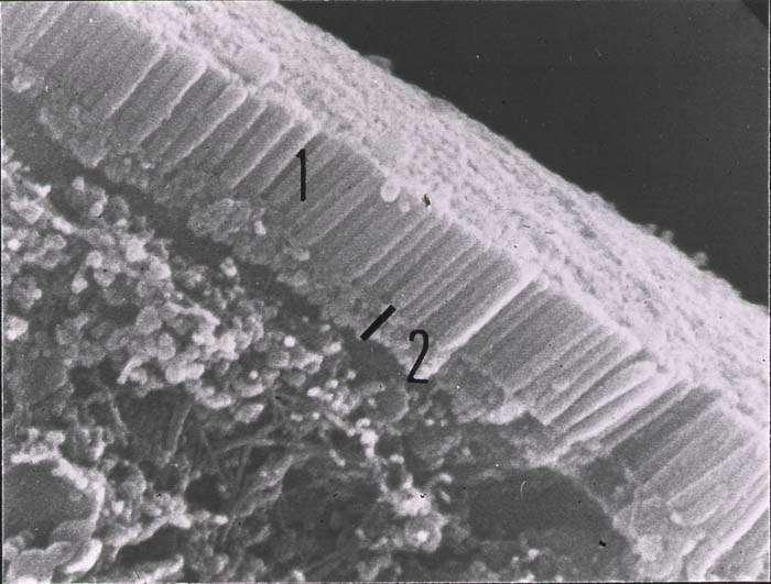 Les entérocytes, des cellules de l'intestin avec des microvillosités