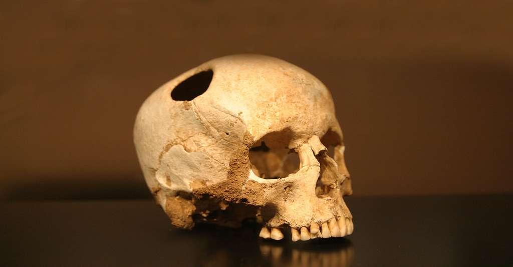 Crâne trépané (environ 3500 avant J.-C.) d'une fillette ayant survécu à l'opération, comme en atteste la légère pousse de l'os en bordure du trou (musée d'histoire naturelle de Lausanne). © Rama, Wikimedia commons, CC by-sa 3.0 FR