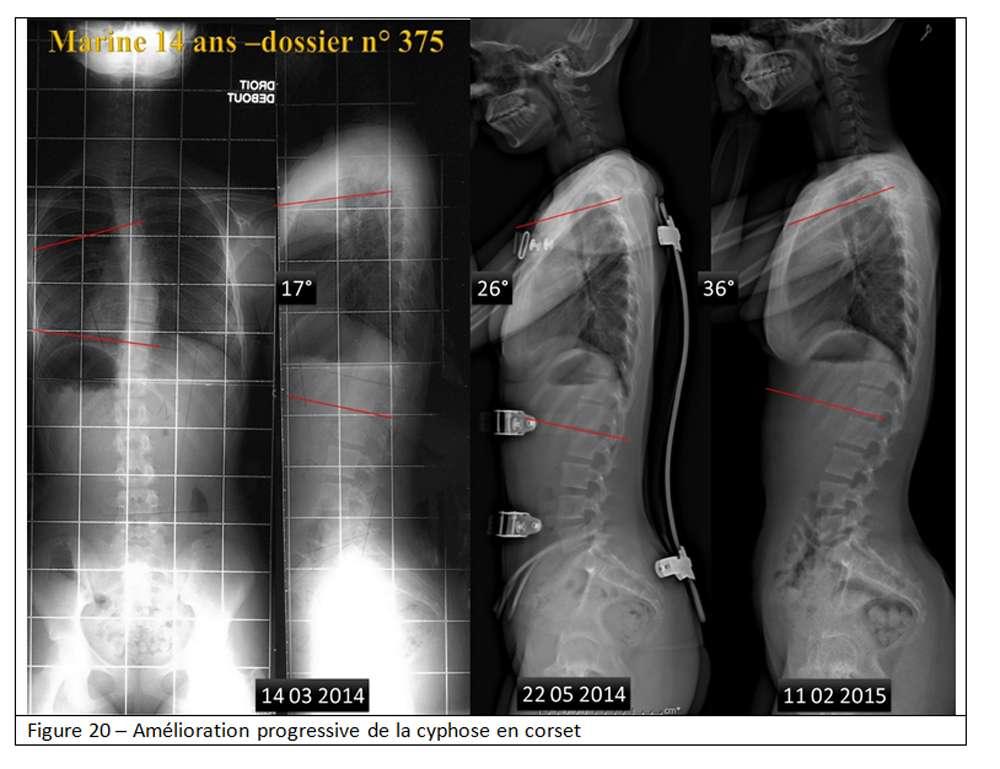 Amélioration progressive d'une cyphose en corset. © Docteur Jean-Claude de Mauroy. Tous droits réservés/Reproduction interdite