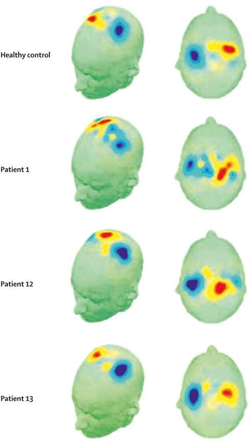 Cartes de détectabilité de l'imagerie motrice. © Elsevier 2011