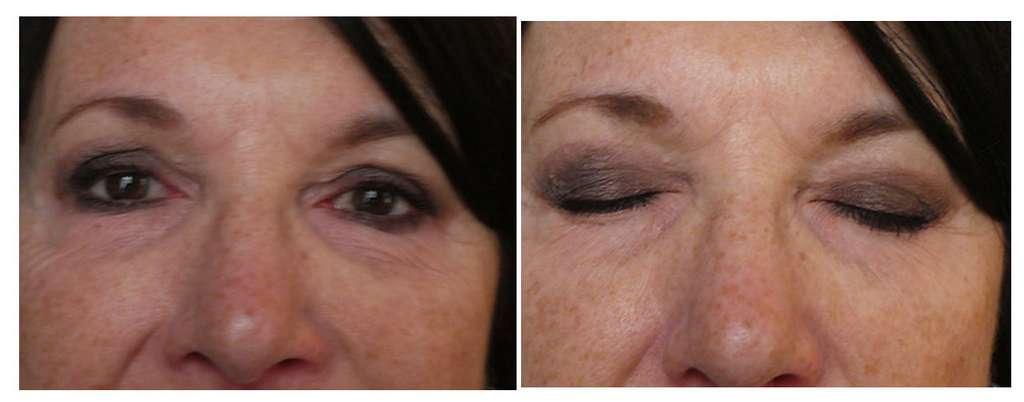 Résultat de la même patiente après deux mois à gauche et les yeux fermés à droite. © Dr Mitz, tous droits réservés