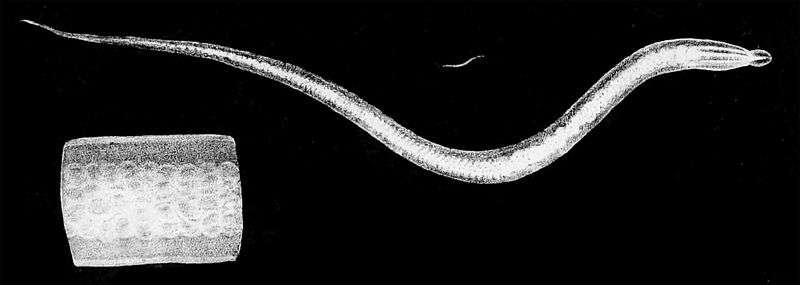 Le ver Ascaris lumbricoides est un parasite intestinal de l'Homme et d'autres mammifères. Il peut mesurer jusqu'à 30 cm de long. Mieux vaut ne pas en avoir trop dans son ventre... © Johann Gottfried Bremser, Traité zoologique et physiologique sur les vers intestinaux de l'Homme, Wikipédia, DP