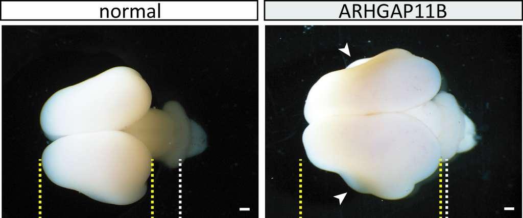 Cerveau de ouistiti normal (à gauche) et modifié avec le gène ARHGAP11B (à droite). La taille du cortex cérébral (lignes jaunes) est accrue chez les singes transgéniques. © Heide et al, MPI-CBG