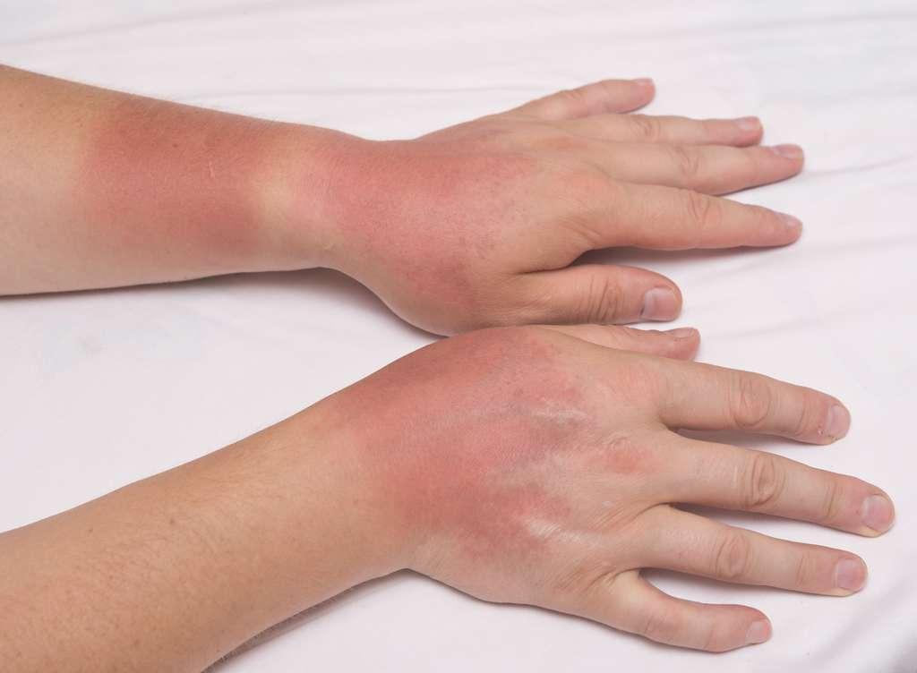 Certains médicaments à voie orale ou cutanée sont photosensibilisants : ils peuvent provoquer brûlures ou allergies. © rufar, Fotolia.com