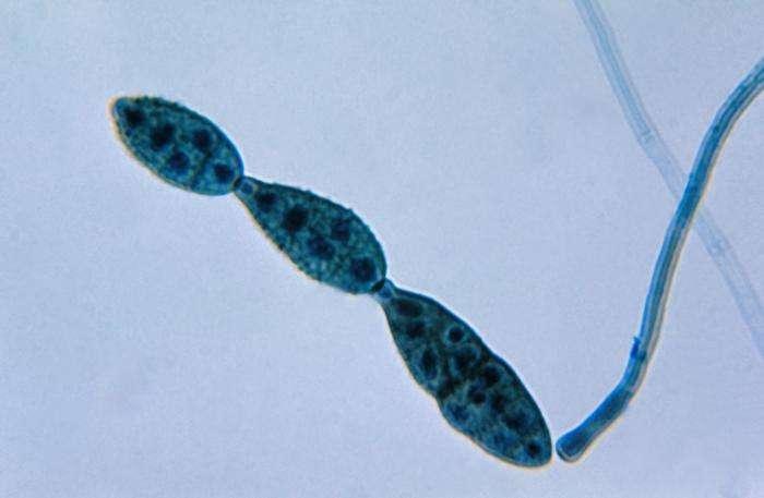 Alternaria sp. La présence d'humidité dans les grains est un facteur de développement important des moisissures appartenant à ce genre. © DP