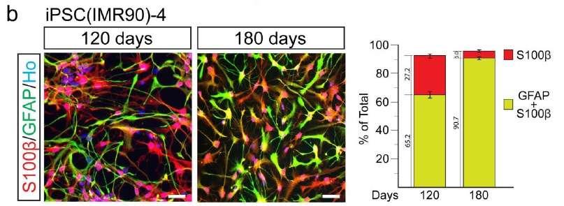 Après 120 et 180 jours de culture, les cellules souches se transforment progressivement en astrocytes, ce qui est observé car elles expriment de plus en plus les protéines S100β et GFAP (en rouge et en vert, et leur mélange, orange et jaune). © Nature Biotechnology