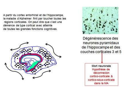 Quand la maladie d'Alzheimer (MA) atteint l'ensemble des régions corticales, toutes les grandes fonctions cognitives sont atteintes. © DR