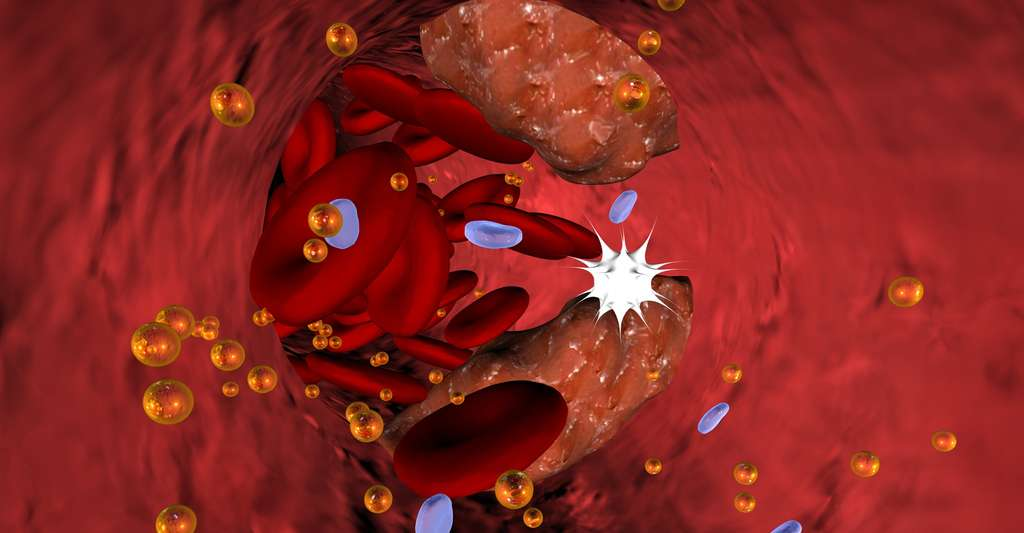Vue d'une artère bouchée, phénomène appelé athérosclérose, ou durcissement des artères. © Christina Lohmeyer und Sasa Ilic - CC BY-NC 3.0