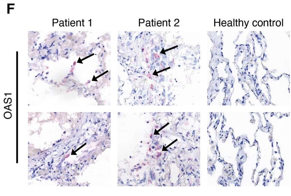 La présence du transcrit du gène OAS1 identifiée dans le tissu pulmonaire de deux patients décédés de la Covid-19. © Arthur Wickenhagen et al. Science