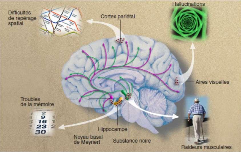 La maladie des corps de Lewy détruit en priorité les neurones de la substance noire et du noyau basal de Meynert. La substance noire irrigue les circuits moteurs du cerveau en dopamine (flèches vertes) ; le noyau basal de Meynert fournit de l'acétylcholine (flèches roses) à l'hippocampe (plaque tournante de la mémoire) et au néocortex qui assure l'ensemble des fonctions cognitives. Quand les corps de Lewy (points rouges) sont localisés dans l'hippocampe, ils provoquent des troubles de la mémoire ; situés dans les zones pariétales, ils entraînent des difficultés de repérage spatial, et dans les aires visuelles, des hallucinations. Localisés dans la substance noire, ils sont responsables de raideurs musculaires. © Shutterstock, Cerveau & Psycho