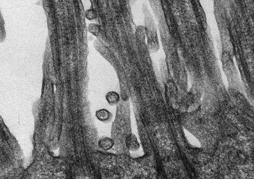 Le coronavirus attaché à des cellules épithéliales de la sphère respiratoire. © M.Rosa-Calatraval, O.Terrier, A.Pizzorno, E.Errazuriz-Cerda